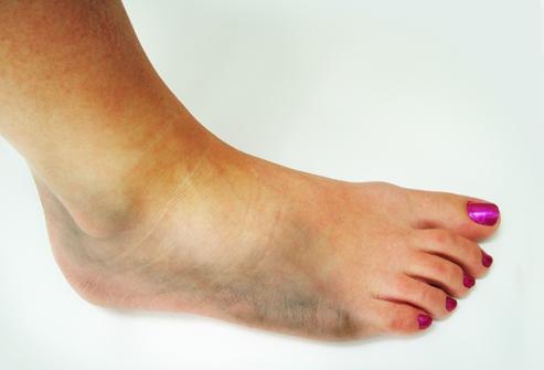 Отеки на ногах после перелома что делать