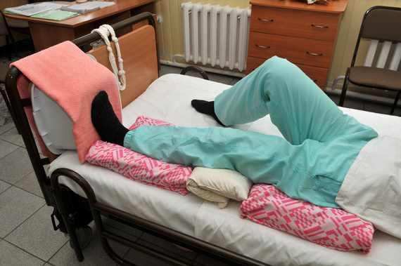 Уход за больной с переломом шейки бедра в домашних условиях