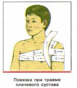 Повязка при ушибе плечевого сустава накладывают повязку