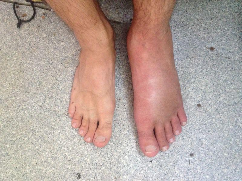 Мазь для лечения болей в колене