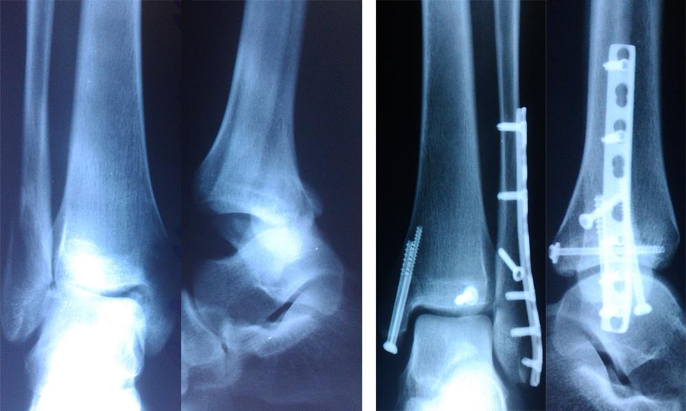 Операция голеностопный сустав пластина