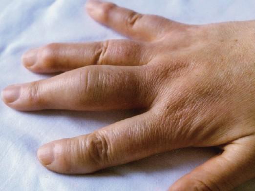 опух сустав указательного пальца ноги