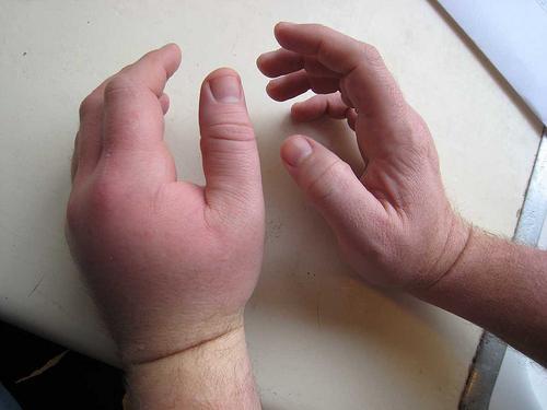 Инфекция опухла рука что делать