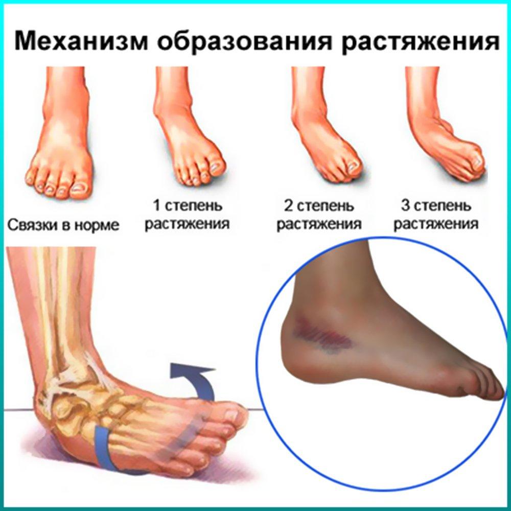 Как получить растяжение связок на ноге в домашних условиях