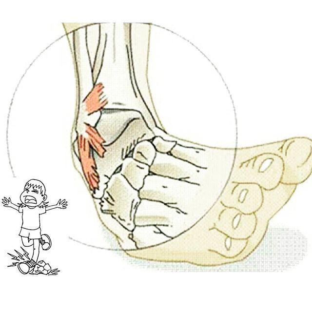 Желтые ногти на ногах чем лечить дома