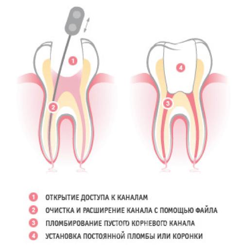Почему сильно болит зуб после пломбирования каналов