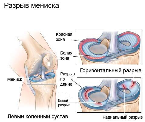 жидкость для коленного сустава после удаления мениска