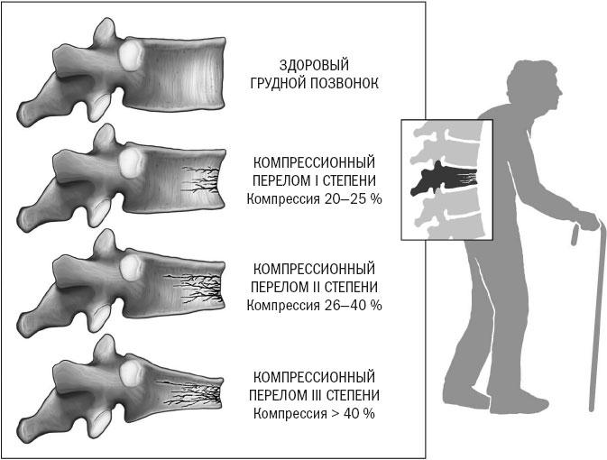 Компрессионный перелом позвоночника тяжесть