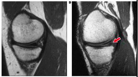 Снимок мрт разрыва мениска коленного сустава