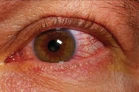 химический ожог глаза лечение