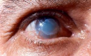 химический ожог роговицы глаза