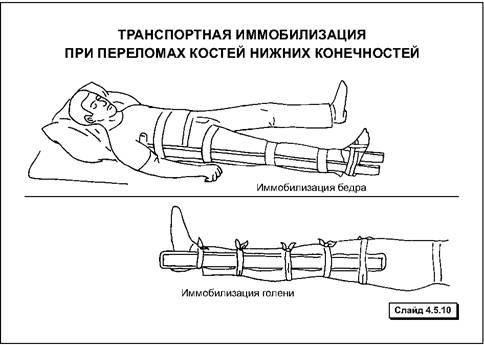 имммобилизация при переломе ноги