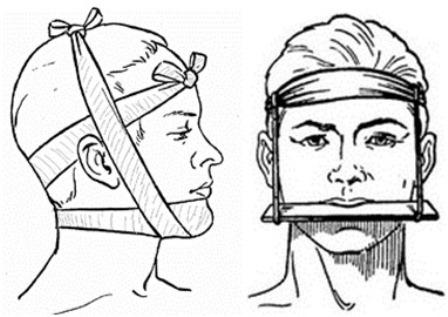 иммобилизация челюсти при переломе