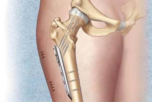 использование титановых плстин при переломе бедра