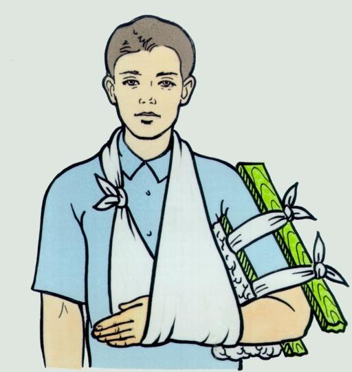 как оказать первую помощь при переломе костей предплечья