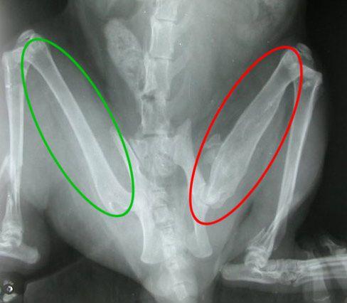 консолидирующийся перелом