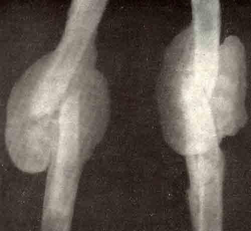 костный мозоль после перелома