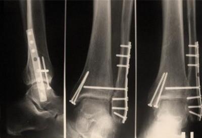 остеосинтез при переломе лодыжки