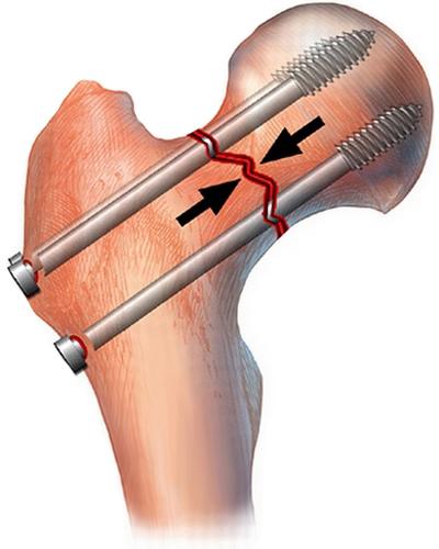 остеосинтез шейки бедра при переломе