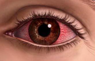ожог глаза перекисью