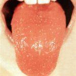 ожог языка фото 5