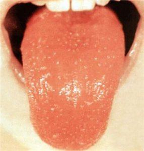 ожог языка чем лечить