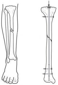 перелом большая берцовая кость