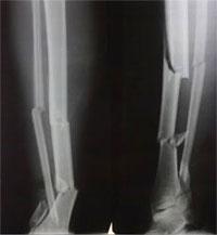 перелом большеберцовой кости рентген