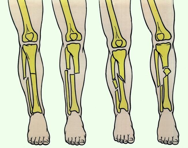 перелом большой берцовой кости