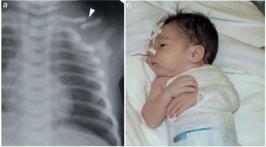 перелом ключичной кости у новорожденного