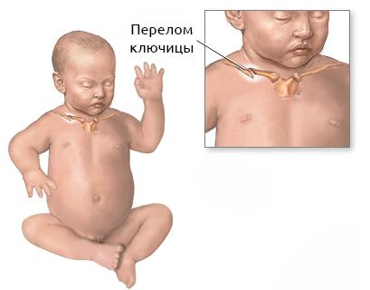 перелом ключицы у новрожденного