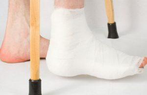 перелом лодыжки ношение гипса