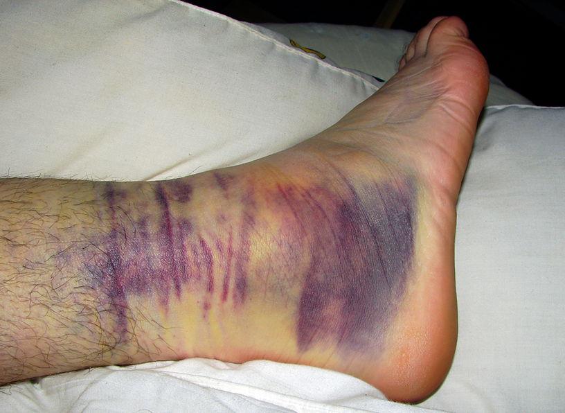 перелом лодыжки симптомы