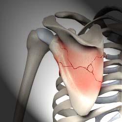 перелом лопатки лечение