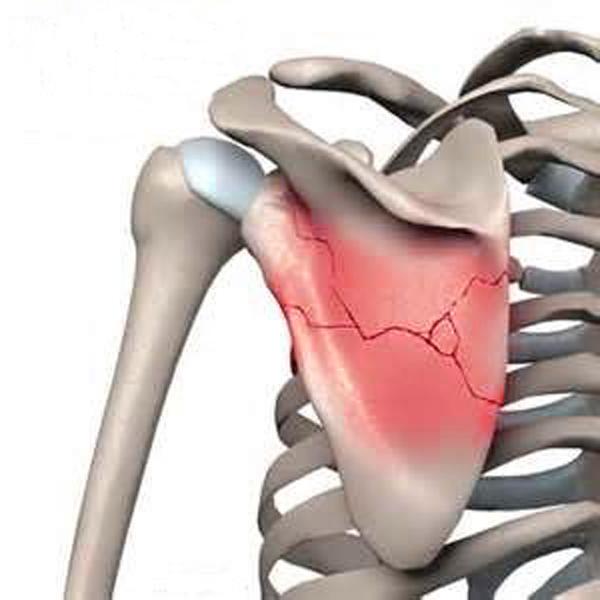 Перелом лопатки: лечение и симптомы