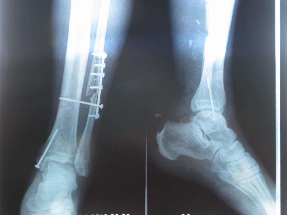перелом малой берцовой кости лечение