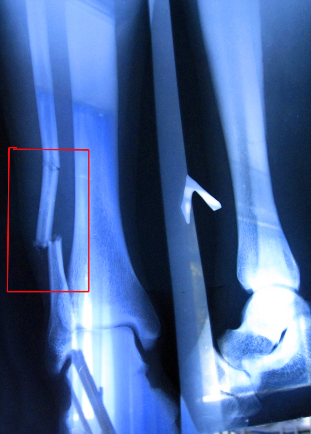 Перелом малой берцовой кости: лечение и реабилитация, сколько ...
