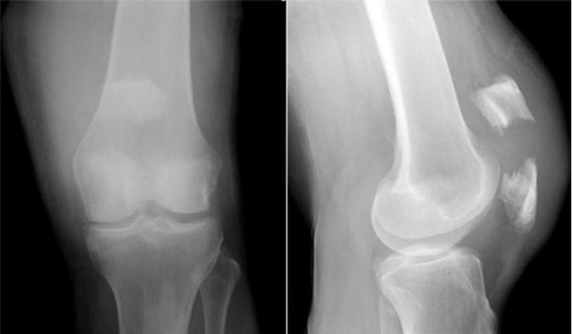 перелом надколенника рентгеновский снимок