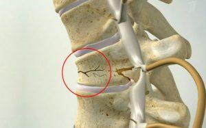 перелом позвоночника компрессионный