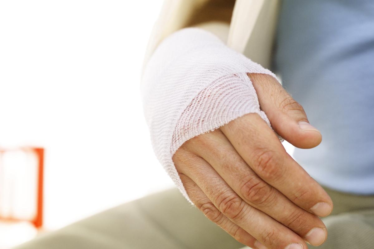 перелом руки виды