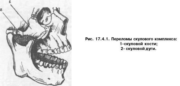 перелом скуловой кости и скуловой дуги