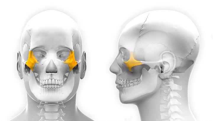 перелом скуловой кости последствия