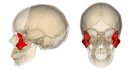 Перелом скуловой кости: последствия, лечение, симптомы