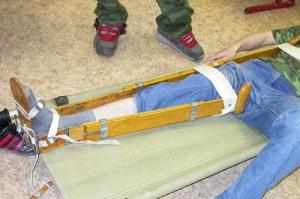 первая помощь при переломе бедра