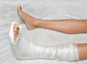 первая помощь при переломе ноги симптомы