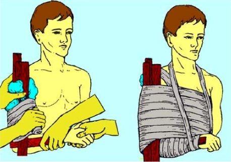 первая помощь при переломе предплечья