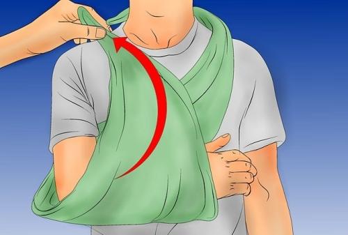 первая помощь при переломе руки