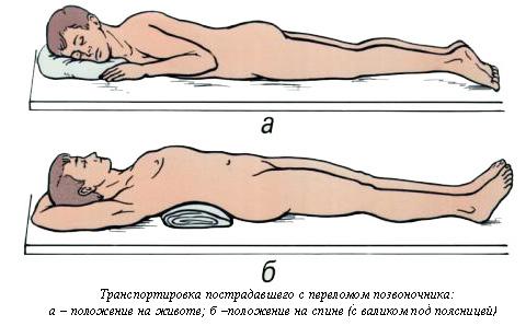 помощь при переломе позвоночника