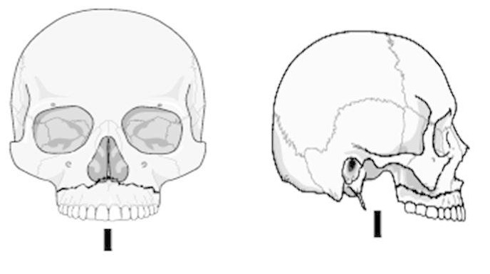 верхняя челюсть перелом ле фор 1