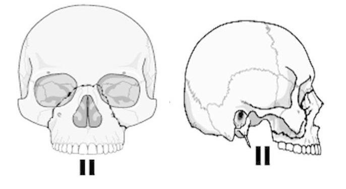 верхняя челюсть перелом ле фор 2
